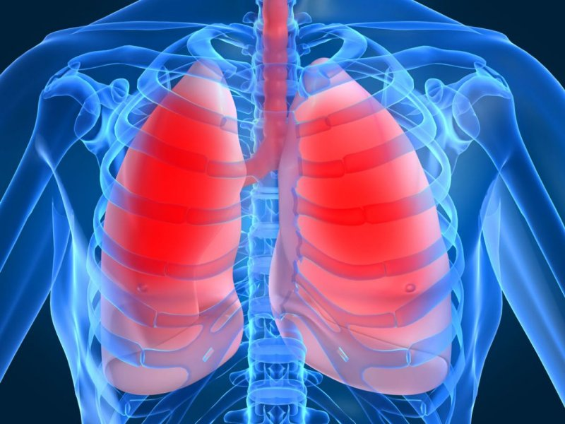 5 professions that lead to lung cancer
