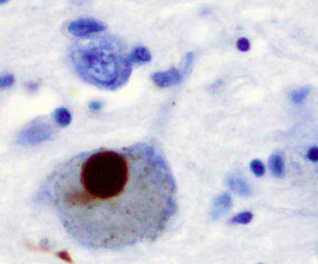 Scientists overturn odds to make Parkinson's discovery