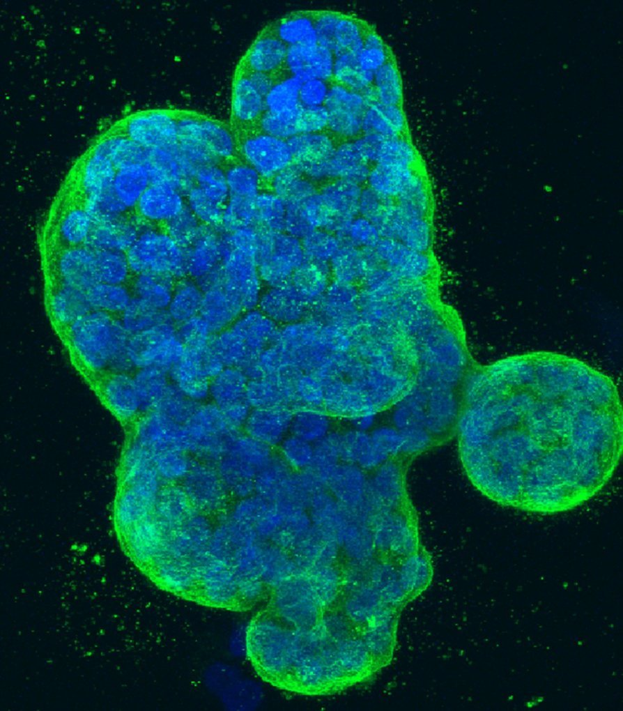 Researchers identify ways breast cancer avoids immune system detection