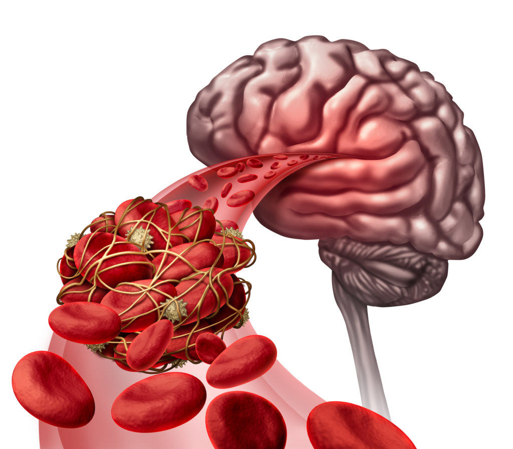 Blood clots in the head – symptoms, cause and treatment