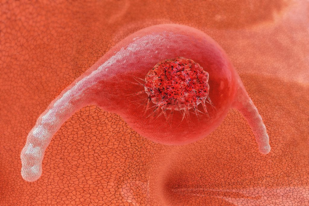 Developed cancer-Test is achieved for the first time, one hundred percent detection rate