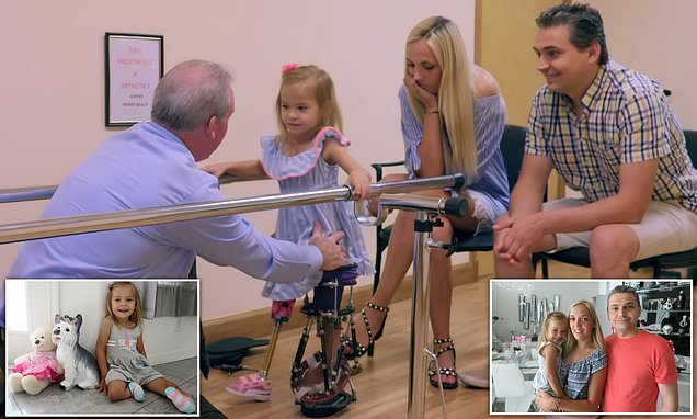 Toddler who was born with BACKWARDS LEGS can finally walk