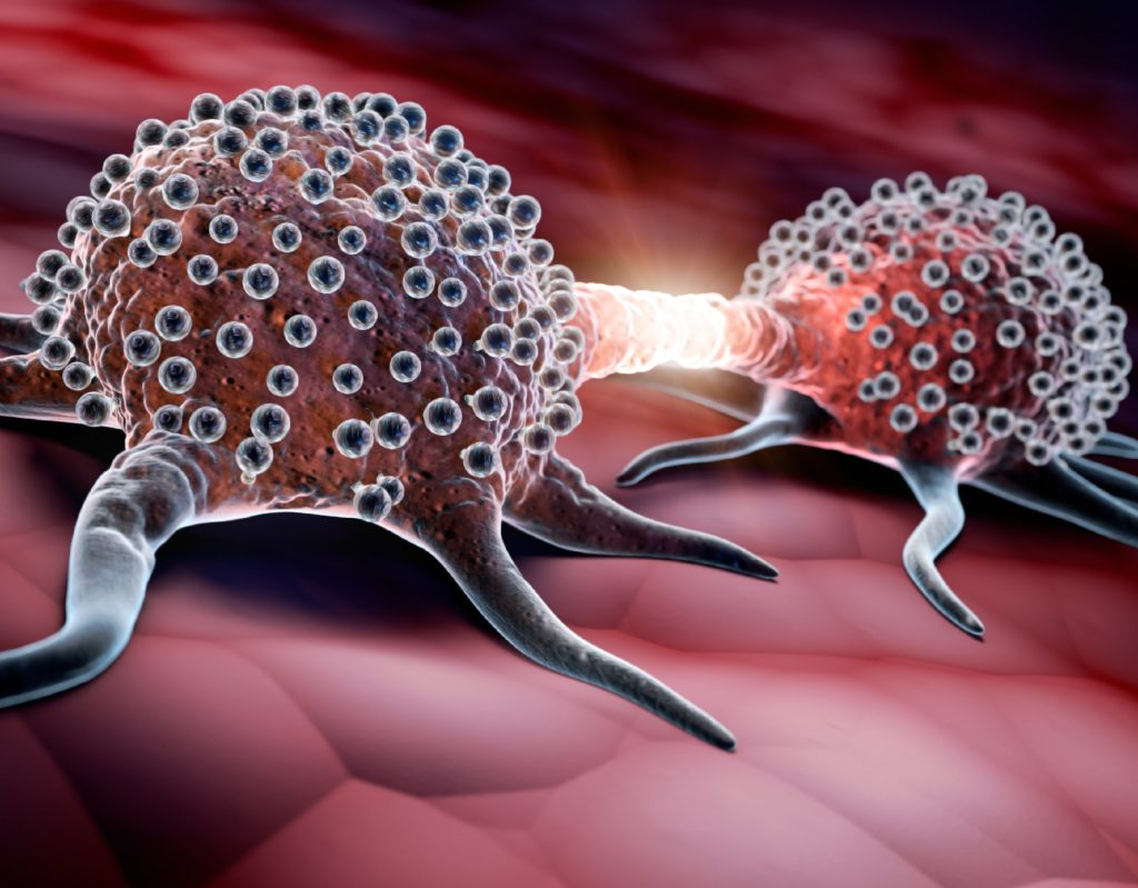 Cancer therapy: Newly discovered active compound under the formation of metastases presses now