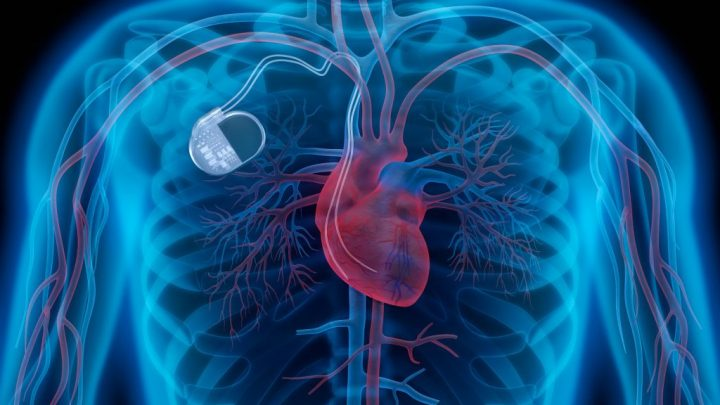 Pacemaker: a health hazard for heart patients – Medtronic recalls over 150,000 pacemakers in the world