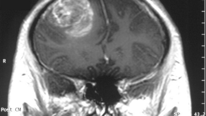 Promising compound selectively kills brain cancer stem cells
