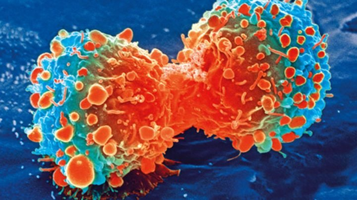 Major mutation pattern in cancer occurs in bursts