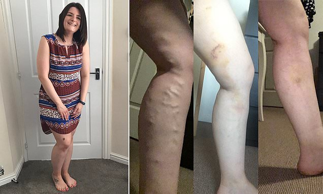 Mother with varicose veins s refused NHS treatment TWELVE times