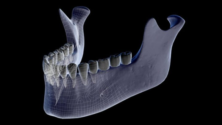 New research could prevent jaw damage in patients being treated for cancer or osteoporosis