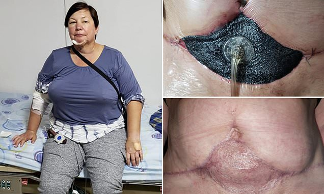 Mother, 53, claims her liposuction nearly killed her