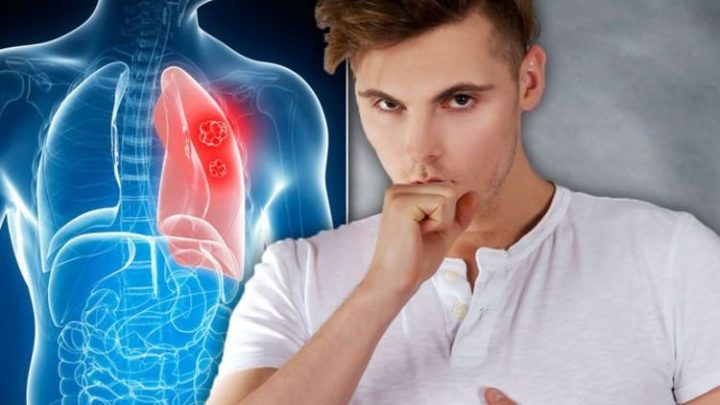 Lung cancer warning: When your cough could be something serious – are you at risk?