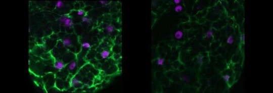 Glial cells may play key epilepsy role