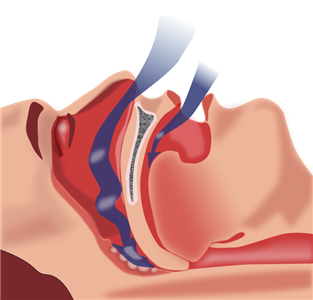 Risk of cardiovascular complications post-surgery doubles for patients with sleep apnea