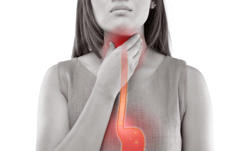 Reflux disease: help for heartburn