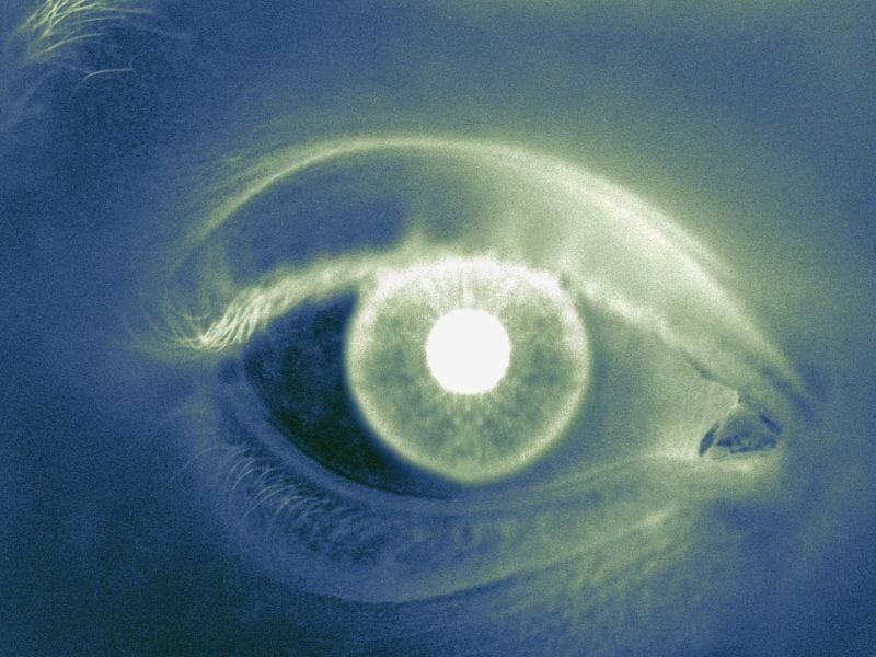 Changing EHR systems may up operating times for eye surgery
