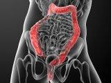 Colonoscopy: The right preparation