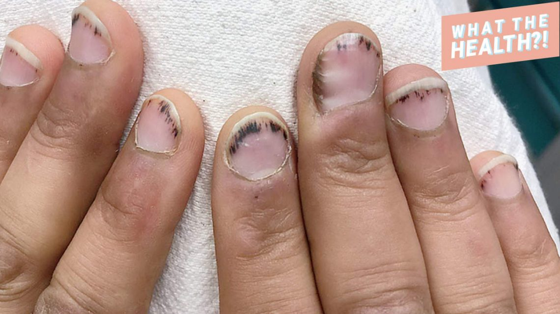 The Dark Lines Under This Man's Nails Signaled a Serious Heart Condition