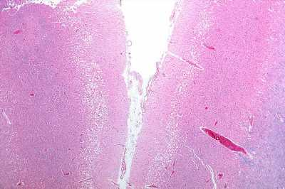 Scientists identify novel protrusions in blood vessels of the brain