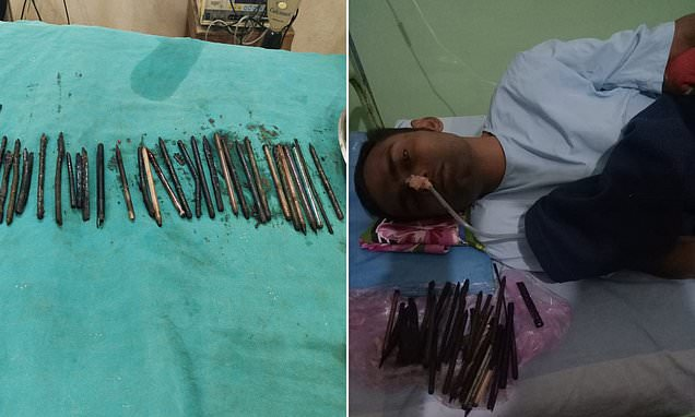 Man in India has 33 objects including razors removed from his stomach