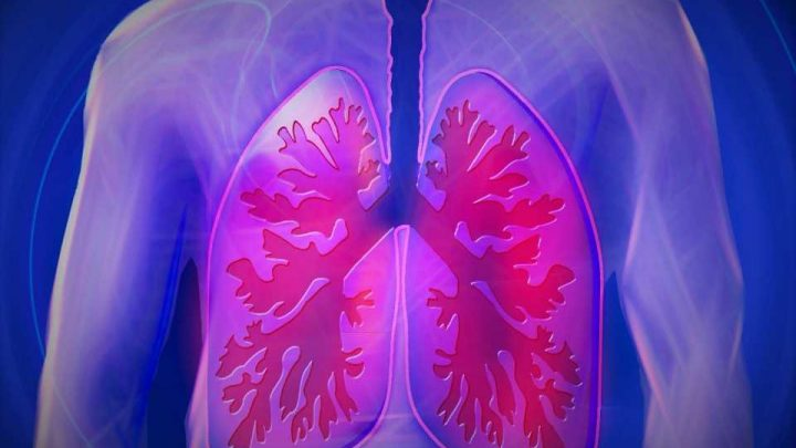 Shaky scaffold changes lung infrastructure