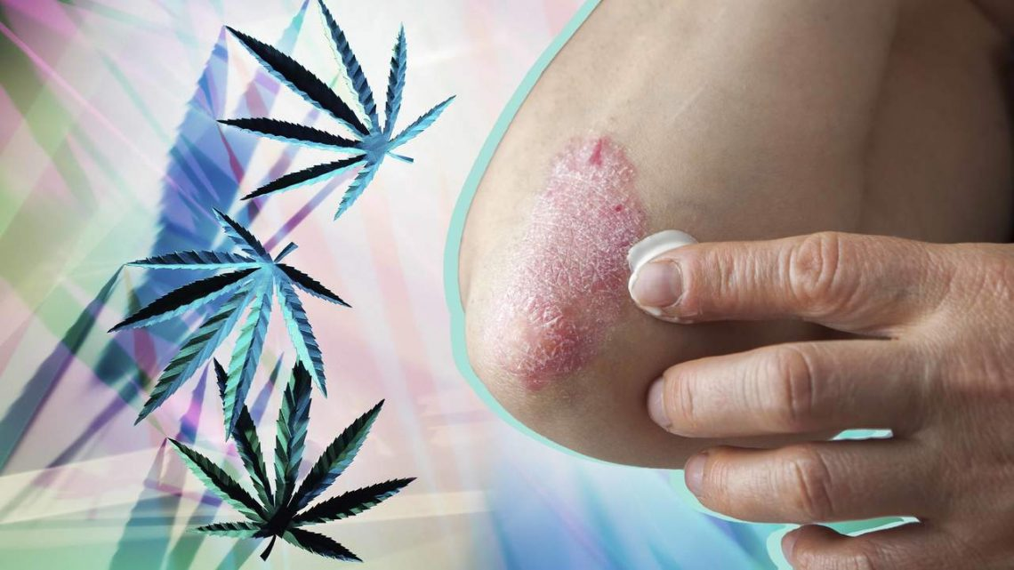 Can CBD Relieve Psoriasis Symptoms? Here's What Doctors Are Saying