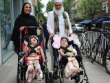 On the head grow together: UK Doctors, conjoined twins Safa and Marwa separate