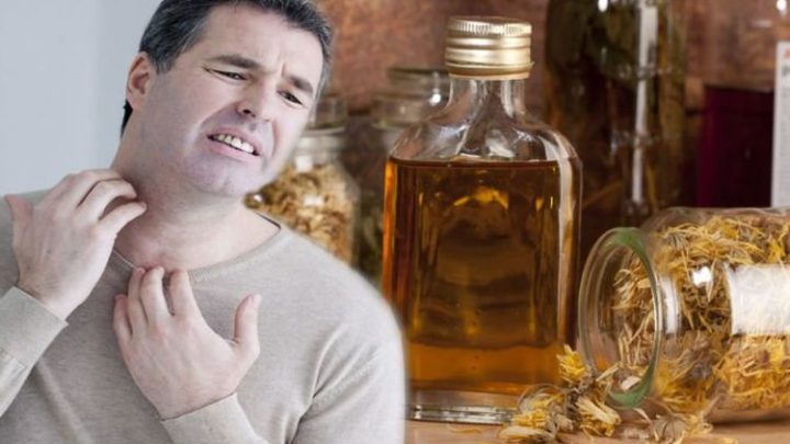 Eczema treatment: This herb has been proven to help soothe symptoms