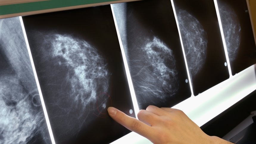 How breast cancer is detected and treated