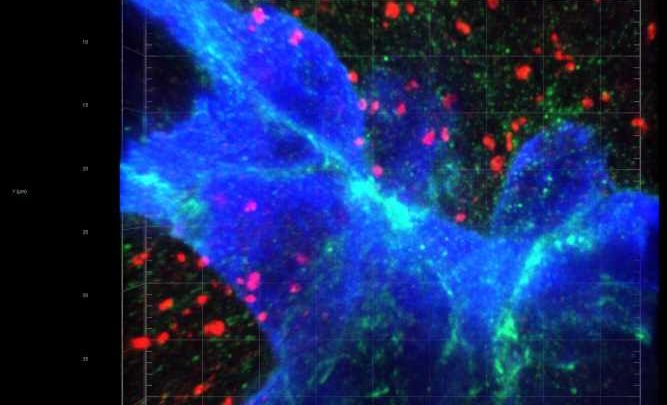 The path of breast-to-brain cancer metastasis