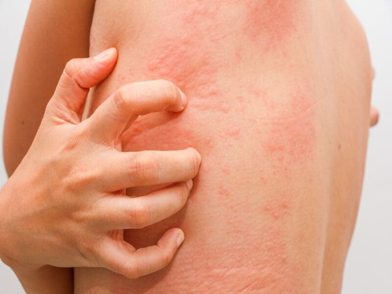 Ligelizumab safely, effectively treats hives
