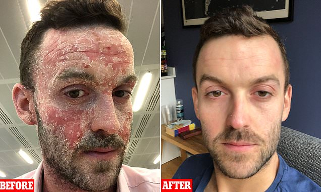 Eczema-stricken man reveals shocking transformation pictures
