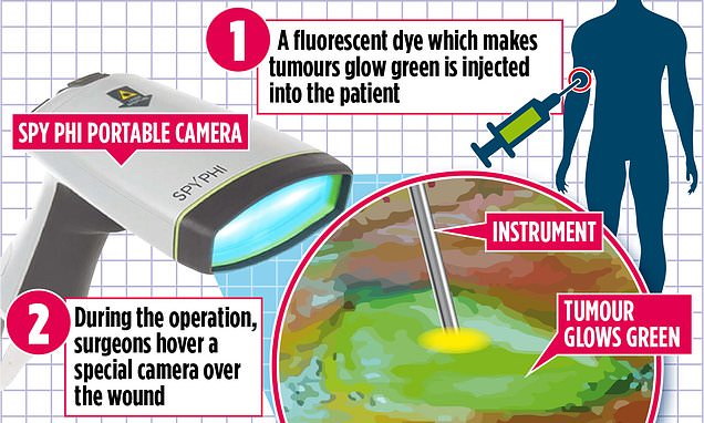 Day-glo dye helps surgeons to trace the trickiest tumours