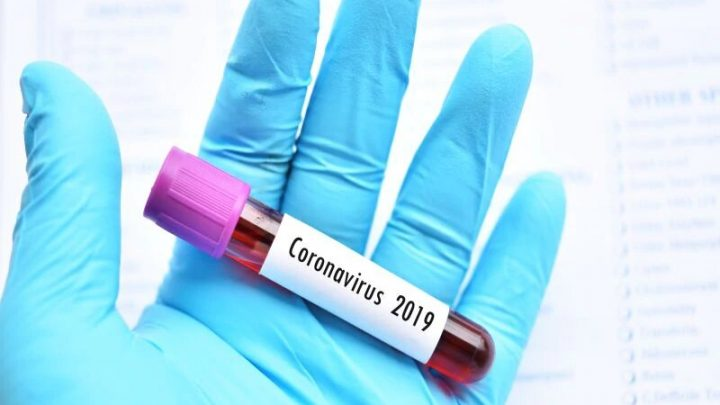 Clinical features ID'd for first 2019 novel coronavirus patients
