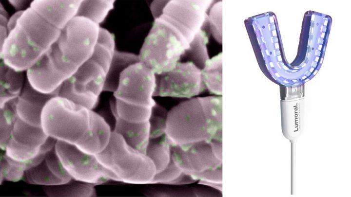 New high-tech mouthwash uses light to kill harmful bacteria on teeth