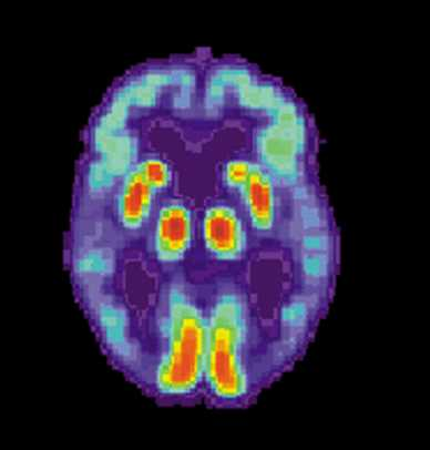 Abnormal proteins in the gut could contribute to the development of Alzheimer's disease
