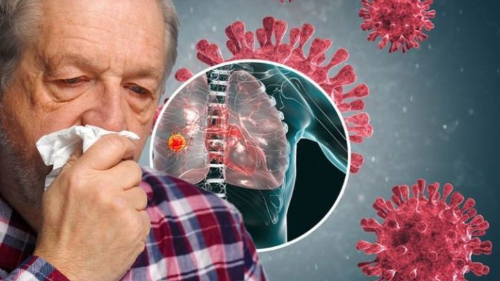 Coronavirus – do you have COVID or could it be lung cancer? What you need to know