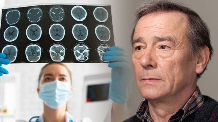 Dementia symptoms: The three main signs of the cognitive decline disease