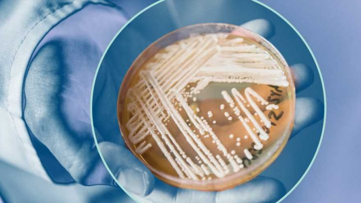 CDC Reports Outbreaks of Drug-Resistant Superbug in 2 US Cities—Here's What to Know